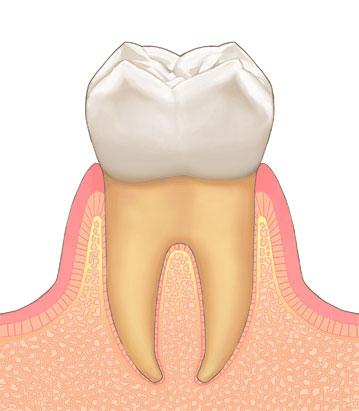 歯周病の進行|1
