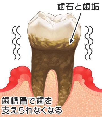 歯周病の進行|5