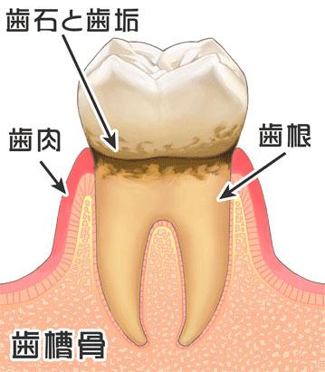 歯周病の進行|2