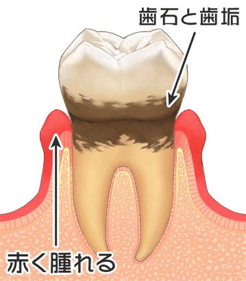 歯周病の進行|3