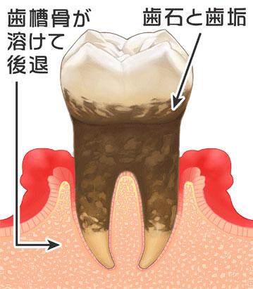 歯周病の進行|4